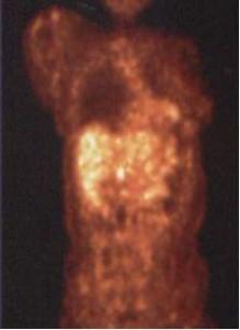 2006年9月診断時