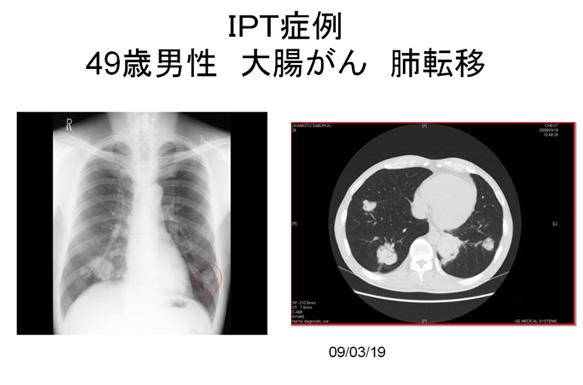 IPT強化療法症例(大腸がん・肺転移)1