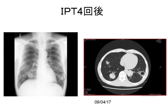 IPT強化療法症例(大腸がん・肺転移)2